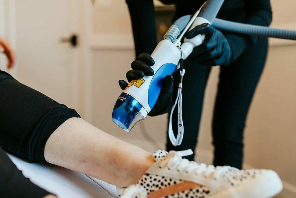 Woman Receiving Laser Vein Removal Lumenis Splendor Treatment in Lemont, Illinois at Solana Aesthetics and Wellness Spa